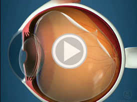 Vitreous In Your Eye; Floaters video